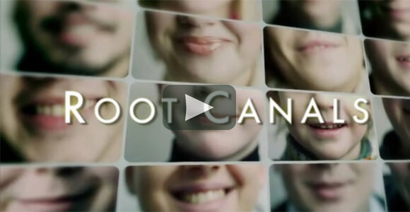 Root Canal Video