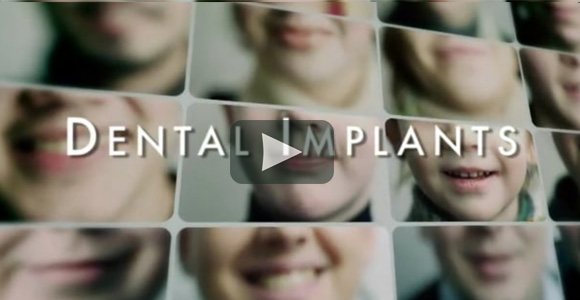 Dental Implants Video