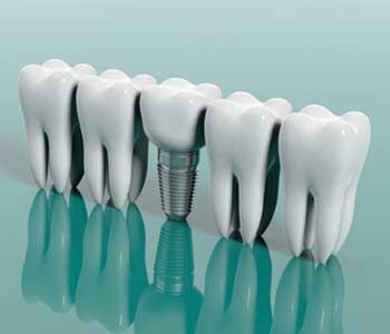 Dentist in Calgary, AB describes the various ways dental implants can be used