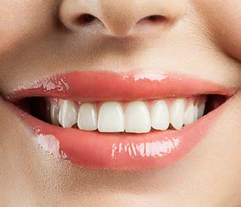 Provides Dental Implants in Calgary AB area Image 2