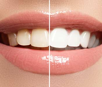 """Dentist in Calgary, AB answers common question, """"What can I do to maintain my brighter smile?"""""""