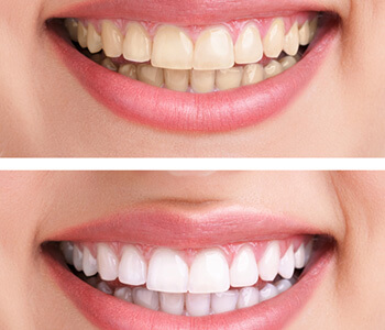 Maintaining your bright smile in Calgary, AB area