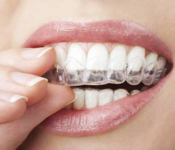 """Patients in Calgary, AB ask, """"Can Invisalign treatment be completed during pregnancy?"""""""