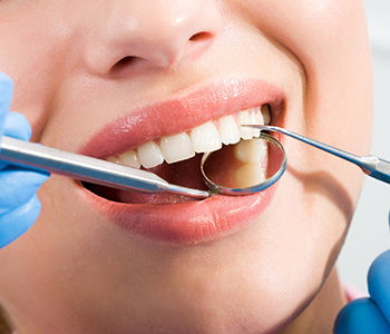 How to Mentally Prepare for Dental Implant in Calgary area