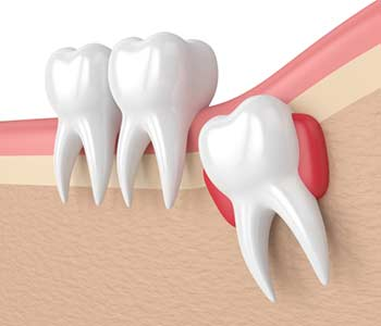Sample structure of a Wisdom Teeth